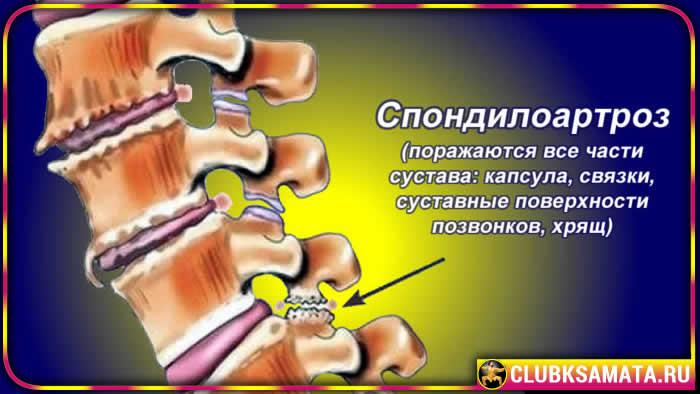 Причины шейного остеохондроза Данила Сусак