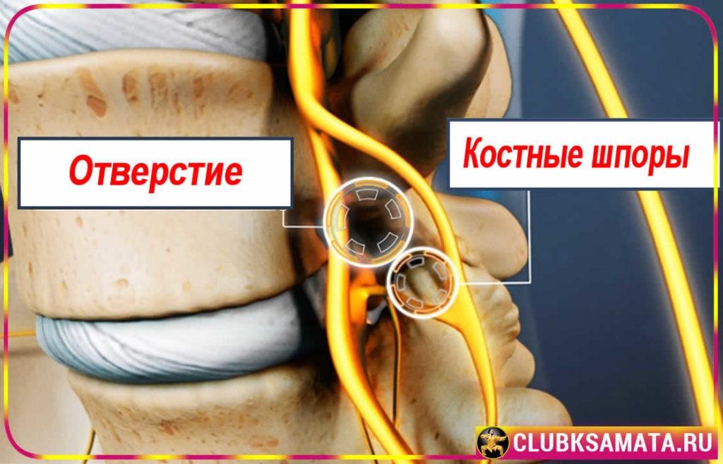 41 1024x658 - Как порванная мышца, или частичное повреждение мышц, вызывает боль в Шее и Спине, которую часто игнорируют