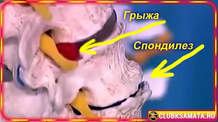 41 452365212365 - Проблемы с шейным отделом позвоночника: почему болит шея при остеохондрозе