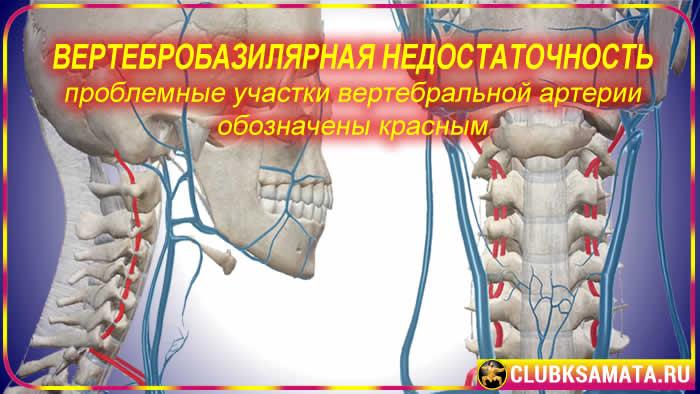 48 - Проблемы с шейным отделом позвоночника: почему болит шея при остеохондрозе