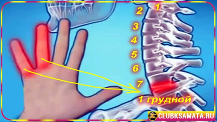 50 - Проблемы с шейным отделом позвоночника: почему болит шея при остеохондрозе