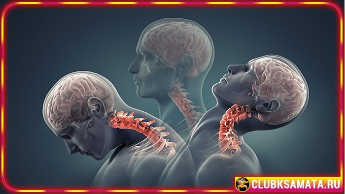 Как избежать обострения остеохондроза