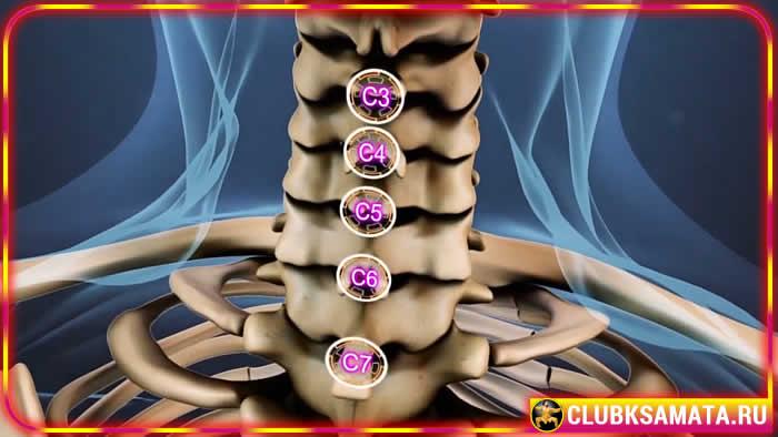 16 - Остеоартроз шейного отдела позвоночника - симптомы и лечение. Наиболее характерные боли в суставах при остеоартрите