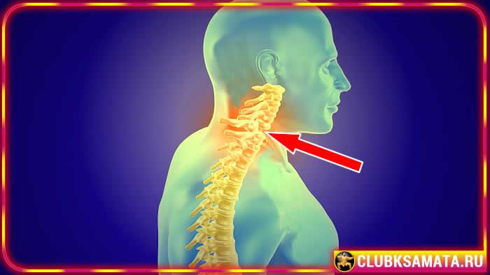 Симптомы смещения шейных позвонков