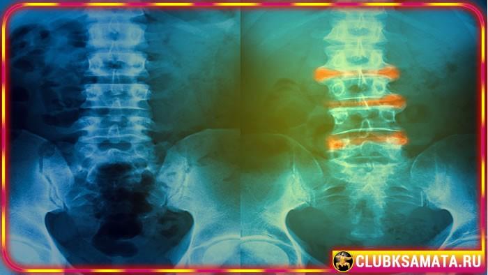 114 - Диагноз остеохондроз позвоночника – какие могут быть причины сильной боли в спине и позвоночнике