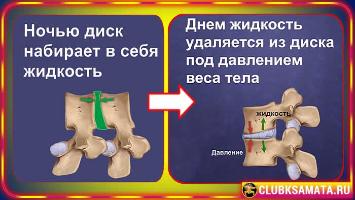 115 - Почему появляются боли в спине – 4 стадии боли в спине или почему развивается остеохондроз