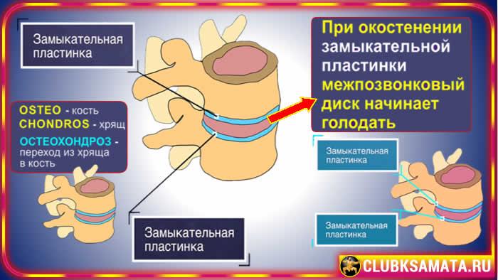 116 - Почему появляются боли в спине – 4 стадии боли в спине или почему развивается остеохондроз