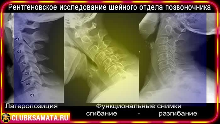 Обследование при боли в шее